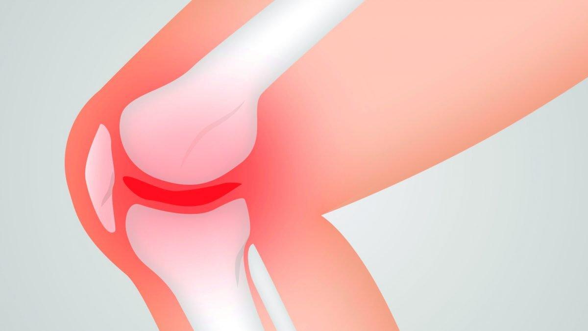 mitos-artrosis